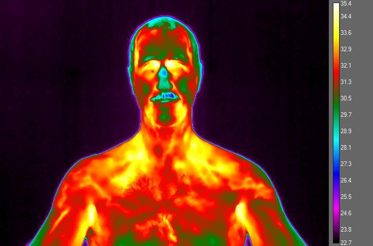 Imagen termográfica